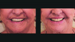 Fig 13 and Fig 14. A bilaterally screw-retained try-in with teeth in wax is performed at the second patient appointment, completely avoiding centric and vertical recording.