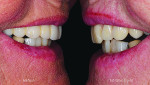 Fig 15 and Fig 16. A natural smile is restored, and natural-looking surface texture returns to the patient's smile.