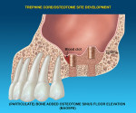 Particulate bone is used to aid in imploding the core apically and elevating the sinus floor.