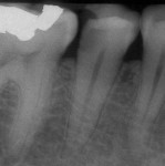 Determining a diagnosis with a radiograph only can lead the clinician to treat tooth No. 29 because of the distal decay. However, if the proper diagnostic tests are performed on tooth No. 29, it should reveal the pulp tested necrotic and its tooth No. 30 that has a symptomatic irreversible pulpitis.