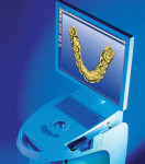 Figure 10  The CEREC 3 system.