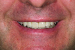 Fig 19. Patient's smile with completed restorations bonded and the posterior teeth equilibrated.