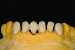 Fig 3. An opacified zirconia is chosen for the case because of the underlying shade of the prepared teeth.