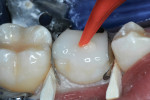 Matrices placed and secured with wooden wedges, two increments of ACTIVA Restorative injected, and photopolymerized.