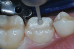 Occlusal and mesial tooth preparation in progress.