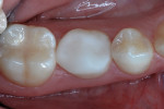 Mesio-occlusal platform, 14 months postoperatively.