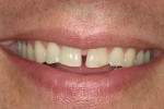 Figure 1  Patient's smile appearance exhibiting a dental midline diastema of 1.79 mm to 2 mm.
