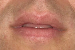 Figure 2  Patient's oral presentation when lips were in repose.