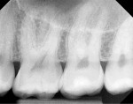 Fig 7. A 3-year follow-up radiograph showed the tooth being asymptomatic.