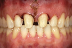 Figure 11  Preparations finalized after periodontal gingivoplasty and frenectomy.