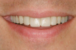 Figure 13  Patient displays natural smile for visualization of prototypes and satisfaction of smile design principles.