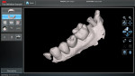 Completed digital scan of implant site fully rendered showing scan body in place with flat spot on the buccal.