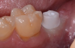 Zirconia abutment after final torquing to 35 ncm with teflon sealed access.