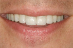 Figure 18  The patient's natural smile with leucite-reinforced porcelain veneer restoration on teeth Nos. 7 through 10.
