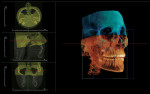 Figure 4  Stitching two CBCT data sets using InVivoDental third-party software. Images are imported DICOM files.