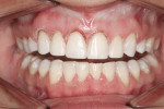 Results of diode laser to gain additional gingival height and additive-only composites establishing proper incisal edge position.