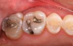 Figure 1  Preoperative condition of the upper right molar teeth.