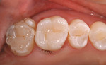 Figure 11  The completed restoration exhibiting natural esthetics. Note: the adjacent tooth was treated to finish the quadrant.
