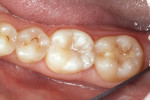 Figure 6  The postoperative photograph shows the final result.