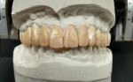 Fig 4. Wax was applied directly over the unprepared tooth structures to maintain the same dimensional space.