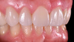 Fig 12 through Fig 14. The final result of the KATANA zirconia UTML crowns.