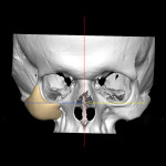 Virtual planning, right zygoma implant.