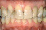 Figure 1  A preoperative evaluation reveals the patient's open diastema. The lateral was fractured incisally, and there was discoloration throughout.