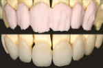 Figure 5A and Figure 5B  GC Initial™ porcelain was applied as a first dentin layer. After the first bake, chroma and incisal porcelain was applied.