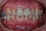Fig 1. A 61-year-old female patient was referred for evaluation of periodontitis.
