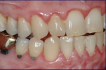Fig 7. Female patient with mild–moderate periodontitis (Fig 7 through Fig 9).