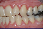 Fig 9. Female patient with mild–moderate periodontitis (Fig 7 through Fig 9).