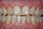 Fig 8. Female patient with mild–moderate periodontitis (Fig 7 through Fig 9).