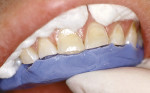 Figure 2  A putty guide made from a diagnostic wax-up is used to establish incisal length.