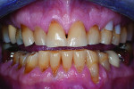Fig 8. The patient's definitive occlusal therapy included equilibration and composite bonding of the damaged teeth to provide appropriate anterior guidance in centric relation. This image shows the pretreatment condition.