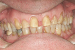 Figure 6  Teeth were prepared for porcelain veneers to improve appearance and close spaces.