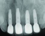 Fig 16. Periapical radiographs taken approximately 2 months after placement of the final prostheses showed excellent maintenance of bone level surrounding all four implant fixtures.