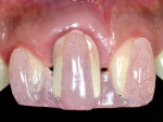 Fig 3. Acrylic template used to record the improvement of implant-related gingival recession.