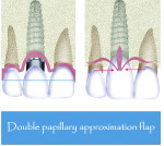 Fig 5 and Fig 6. Schematic illustration of the double-papillary flap approximation (Fig 5) combined with extended subepithelial pedicle (Fig 6) from the palate to treat Class II gingival recession.