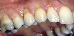Figure 8  Thin tissue biotype, bruxing, and toothbrush abrasion contributing to areas at the gingival margin that exhibited sensitivity to cold. Notice crack lines in the molar.