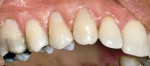 Figure 9: Teeth Nos. 3 through 6 were restored with composite resin to eliminate sensitivity.
