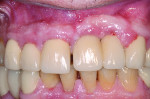 10. Clinical view of the anterior region 6 years later. A midline diastema had opened between the right central incisor and the implant replacing the left central incisor. In addition, the implants appeared to both be more apical to the adjacent dentition and have a slight labial angulation. The calcium channel blocker-associated hyperplasia had also increased.