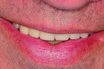 Fig 7. Smile of a 59-year-old male patient at the completion of prosthetic work done in the maxillary anterior. His smile covered most of the teeth, avoiding display of the gingival frame.