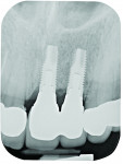 Fig 9. Radiograph exposed at the time of implant restoration. An angled vertical crest remained between the right central incisor and the adjacent implant.