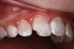 A 10-year-old girl fractured her right central incisor in 1983.