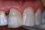 Resin-based composite injected, adapted, and photocured in three portions.