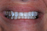 Two months after renewed restoration, dry tooth surface showed white enamel dysmineralization.