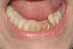 Figure 16  The patient was unhappy with the appearance of her lower anterior teeth because of crowding and discoloration.