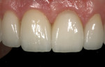 Final restorative outcome (restoration completed by Dennis Hartlieb, DDS, Glenview, Illinois).
