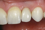 Figure 17  The final all-ceramic, single-implant restoration at cementation.
