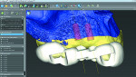"Fig 1. Surface scans (STL) and volumetric data (DICOM) are combined to provide a ""Dental GPS"" prosthetic plan."